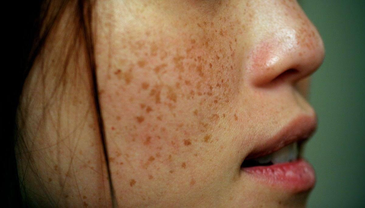 Cách trị nám da và tàn nhang bằng lá trầu không